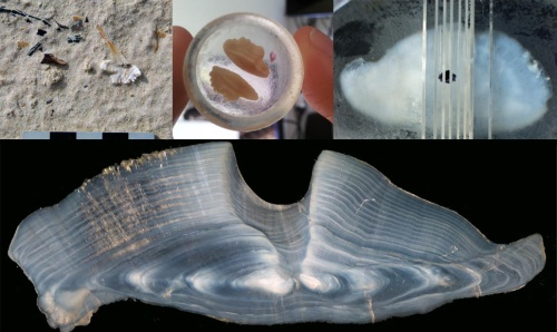 otolith images 1